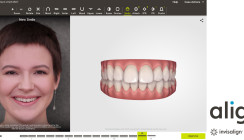 "Invisalign Go System: Launch des ClinCheck ""In-Face"" Visualisierungstools"