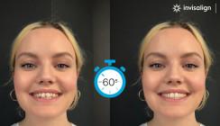 SmileView – Sichtbares Ergebnis in Sekundenschnelle