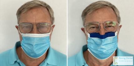 Klare Sicht für Brillenträger: Abstandhalter für Mundschutz