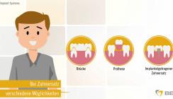 Was ist ein Zahnimplantat? Patientenfilm fürs Wartezimmer