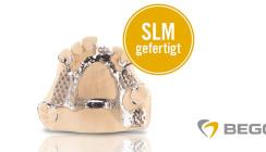 Digital gefertigte SLM-Modellgüsse für Ober- und Unterkiefer