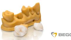 Weltneuheit: BEGO präsentiert 3D-Druck-Hybridmaterial