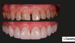 Digitale Dentaltechnologie lässt Patient und Praktiker glücklich lächeln