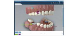 CGM 3D-Patientenberater PRO