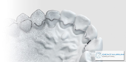 Dentaurum Digital: Innovative Bestellplattform entwickelt