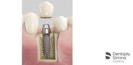 Dentsply Sirona Implants bringt Acuris auf den Markt