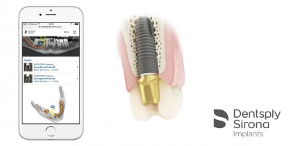 Unterstützung für den gesamten Implantat-Behandlungsprozess