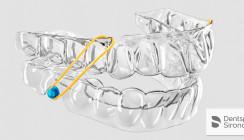 Dentsply Sirona: SureSmile Aligner – Ihre Patienten. Ihre Kontrolle.