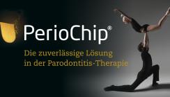 Parodontitistherapie: Dann doch lieber SRP+
