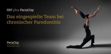 SRP+ PerioChip®: Das eingespielte Team bei Parodontitis