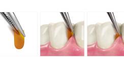 Parodontitis als Risikofaktor bei COVID-19-Verläufen
