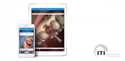 ITI und Touch Surgery kooperieren im Bereich didaktischer Simulationen