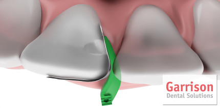 Garrison Dental: Fusion Anterior Frontzahnmatrizensystem