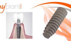 MyPlant II: Herausragendes Implantatsystem
