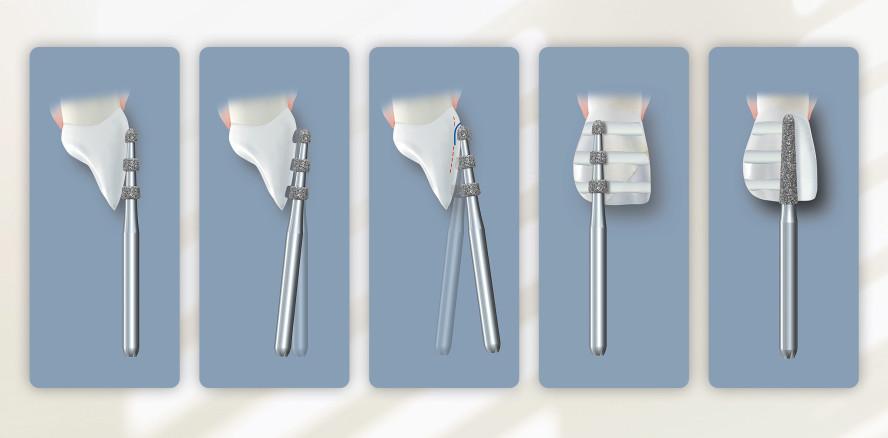 Step-by-Step: Keramikveneers substanzschonend präparieren