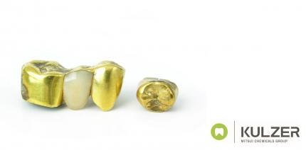 Kulzer erhöht Altgold-Spenden durch Verzicht auf Scheidekosten