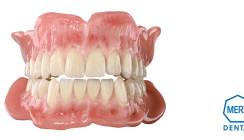Wissen auffrischen – Skills Loading von Merz Dental