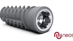 Mit Neoss ProActive® Edge Implantaten zu hervorragender Primärstabilität
