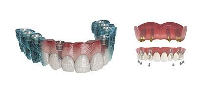 Multi Ti-Base & intraoraler Scankörper
