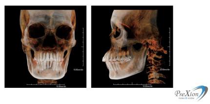 Hohe 3D-Bildqualität bei geringer Strahlenbelastung
