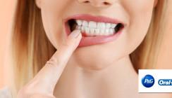 Zündstoff Parodontitis: Oral-B unterstützt zum Tag der Zahngesundheit