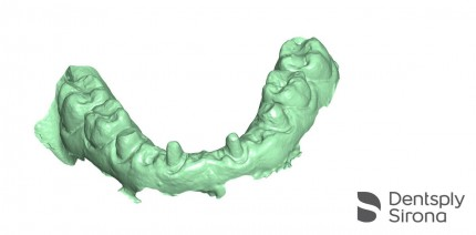 CEREC, ein Gesamtsystem für Restaurationen, Implantologie und Kieferorthopädie