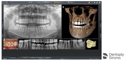 Aktuelle Röntgensoftware Sidexis erfüllt DICOM-Anforderungen