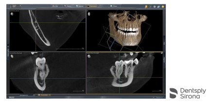 Dentsply Sirona: Neue Softwareversion Sidexis 4