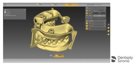inLab Software Update 18.0 bereichert zahntechnischen CAD/CAM-Workflow