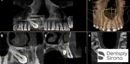 Indikationsbasiertes 3D Röntgen im Dosisbereich einer 2D Aufnahme