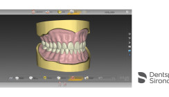 Totalprothese mit inLab Software 20.0 – einfach digital