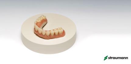 Straumann erweitert digitales Programm mit JUVORA™ Dental Disc