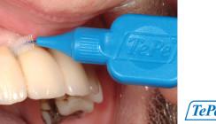 Implantatpflege zur Vermeidung periimplantärer Erkrankungen