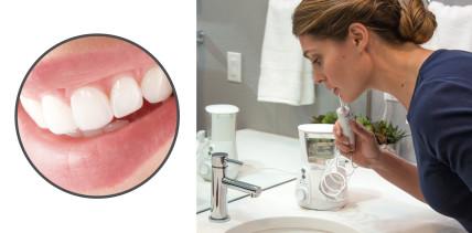Orales Ökosystem: die Mundhöhle als Gesundheitszentrum