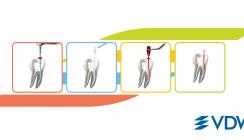 Wurzelkanalbehandlungen mit dem Endo-System von VDW – Gelassenheit inklusive
