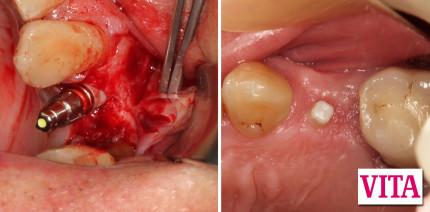 Das hülsenlos geführte keramische Implantat: Effizient, praktikabel, sicher
