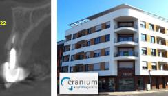 cranium-Patientenfall: 2D- versus 3D-Diagnostik