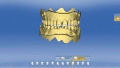 Minimalinvasive Rehabilitation mittels CAD/CAM bei Erosionsgebissen