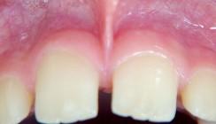 Lippenbandexzision unter Infiltrations- und intraligamentärer Anästhesie