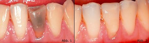 Wurzelbehandlung sich grau zahn verfärbt nach Grau verfärbter