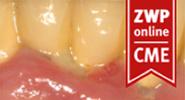 Parodontitis und die bakterielle Kommunikation im Biofilm