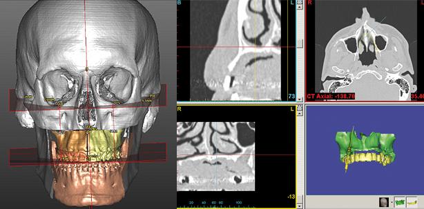 3-D-Planung und klinische Umsetzung von dentalen Implantaten, Dysgnathie Co