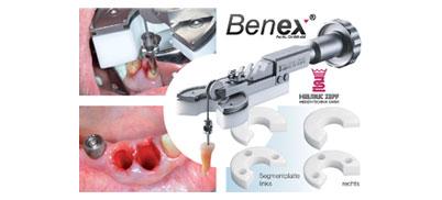 Benex-System