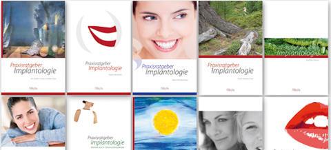 Das Buch zum Implantat