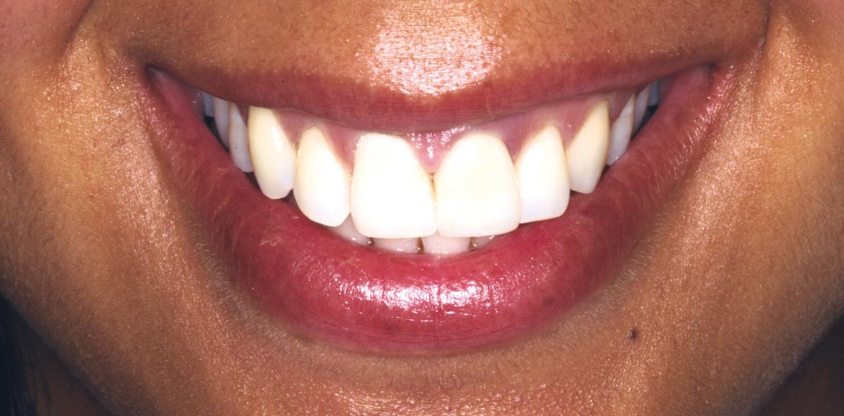 Ästhetische und endodontische Rehabilitation eines oberen ersten Inzisiven