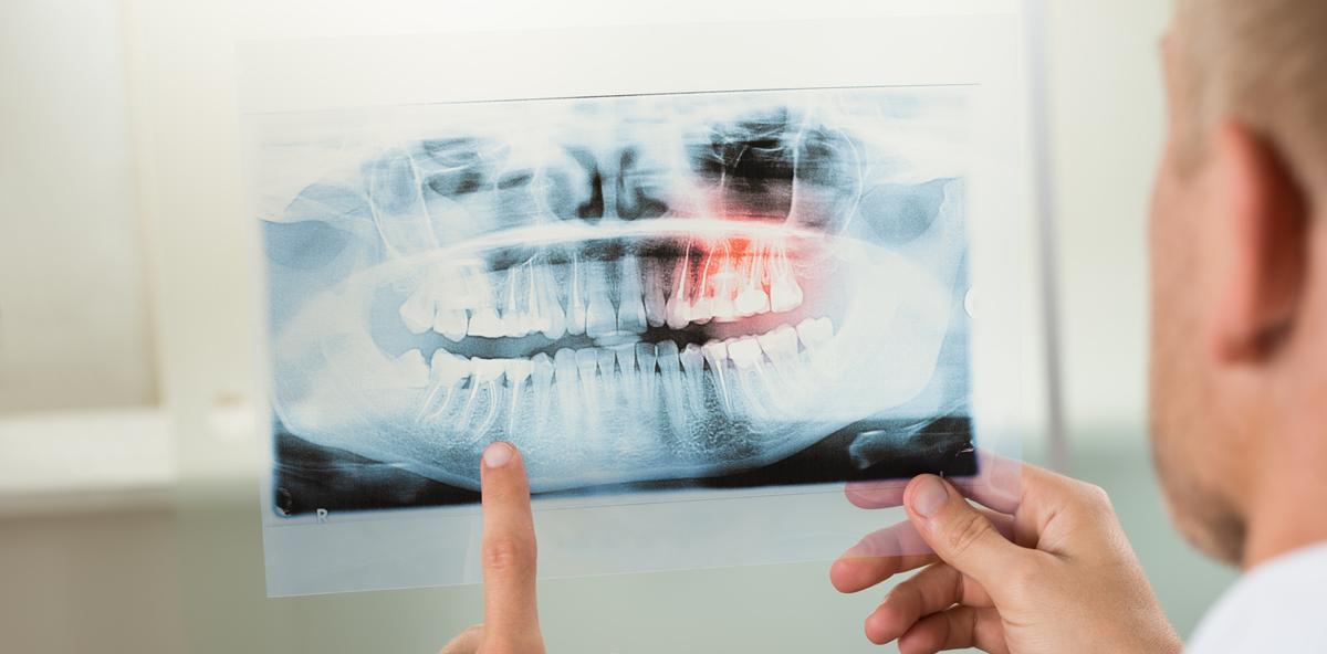 Allogene Knochenblockaugmentation bei Parodontitispatienten