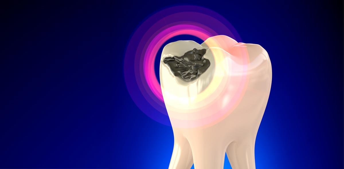 Zahnärztin durfte Patientin mit Amalgam versorgen
