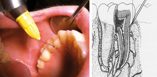 Minimalinvasive Lokalanästhesie – keine Aufklärungspflicht