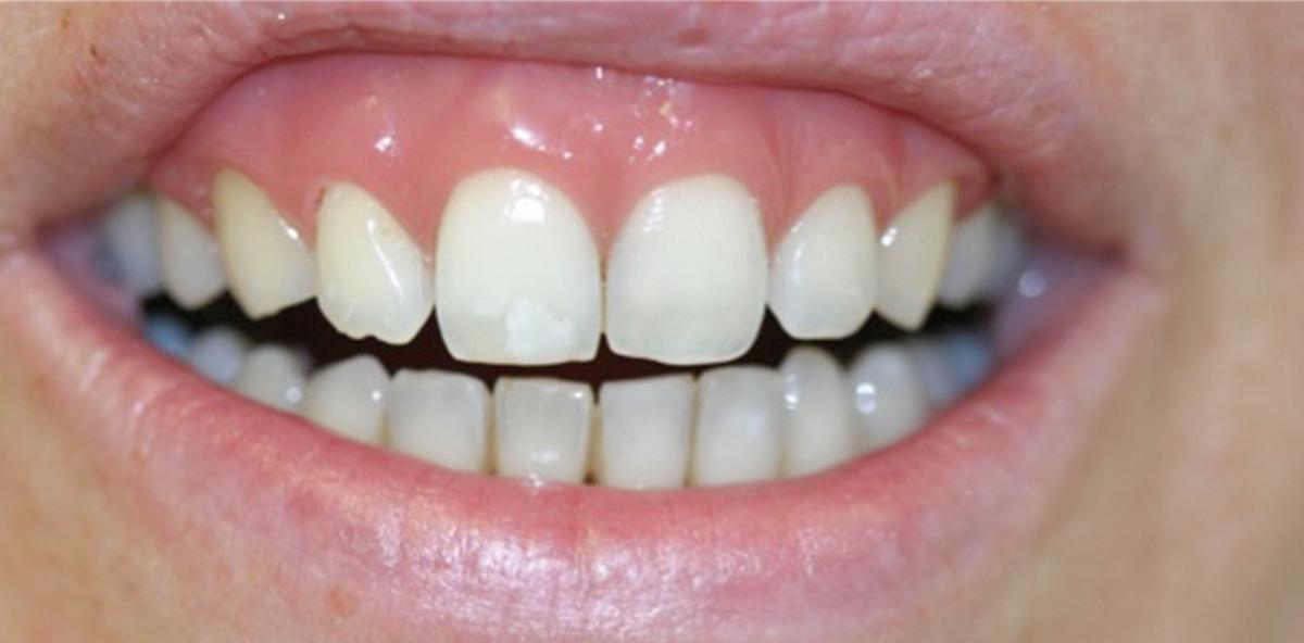 Parodontologie und Ästhetik – ein Widerspruch?