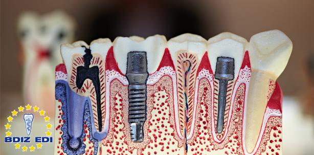 Entzündung am Implantat – schicksalhaft oder vermeidbar?
